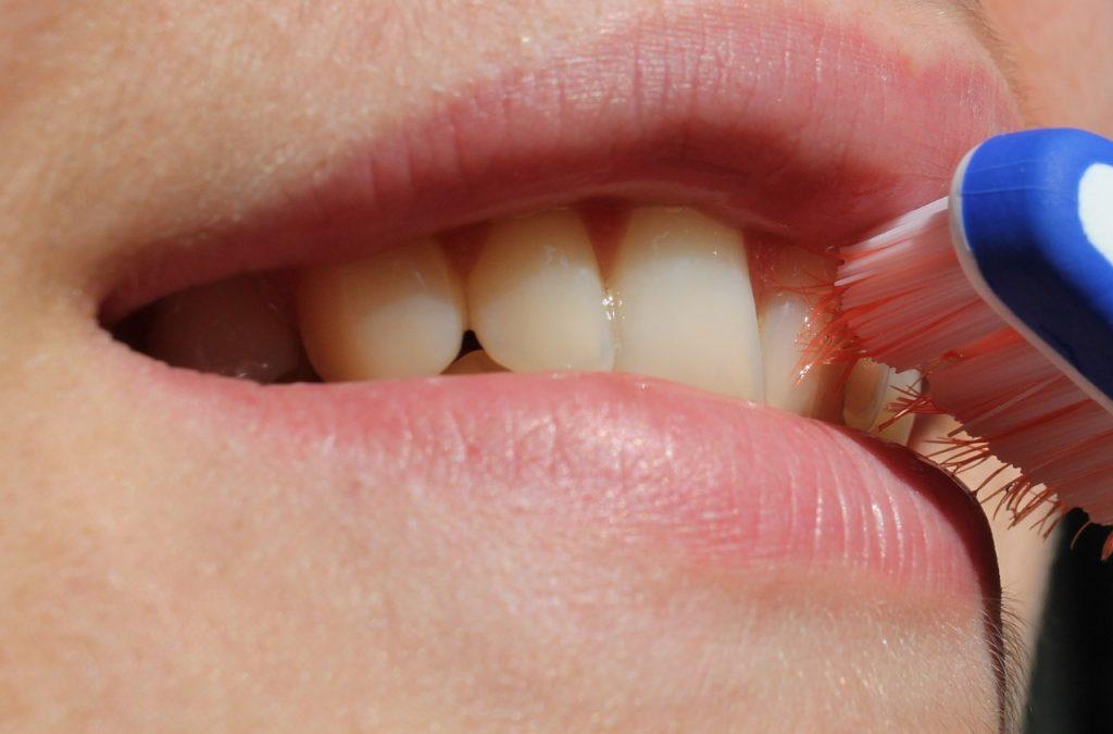 מפרשת שיניים חשמלית
